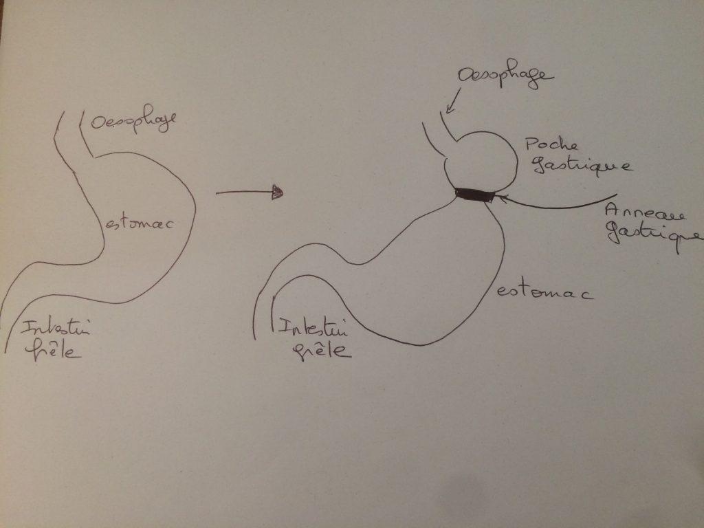 hypnose anneau gastrique virtuel hypnotherapeute marseille